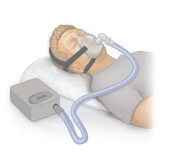 เครื่อง CPAP คือ เครื่องแก้นอนกรน