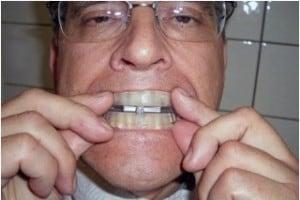 ที่ครอบฟันแก้กรน (เครื่องมือในช่องปากแบบกึ่งสำเร็จรูปชนิดปรับได้)
