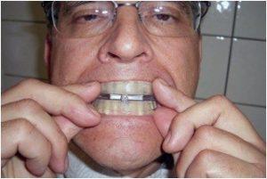 อุปกรณ์รักษานอนกรน ที่ครอบฟันแก้นอนกรน SomnoGuard