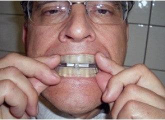 อุปกรณ์แก้นอนกรน ที่ครอบฟันแก้กรน SomnoGuard หลังพิมพ์ฟัน