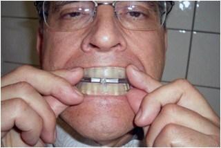 อุปกรณ์แก้นอนกรน ที่ครอบฟันแก้นอนกรน SomnoGuard