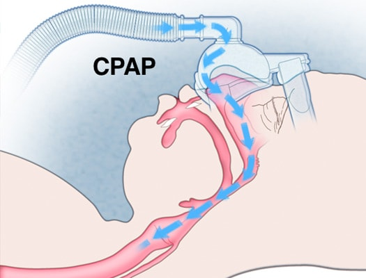 CPAP ทำงานอย่างไร