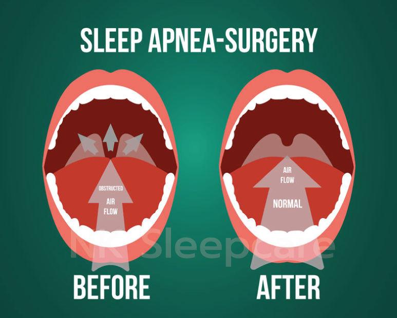 ผ่าตัดรักษานอนกรน