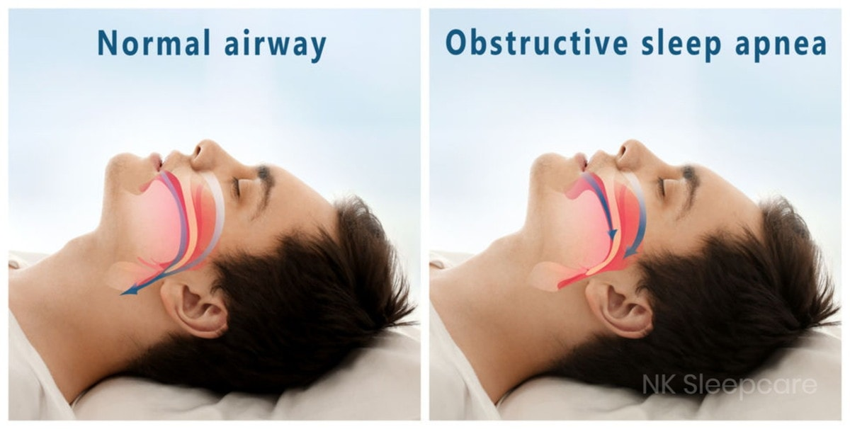 normal airway and obstructive sleep apnea