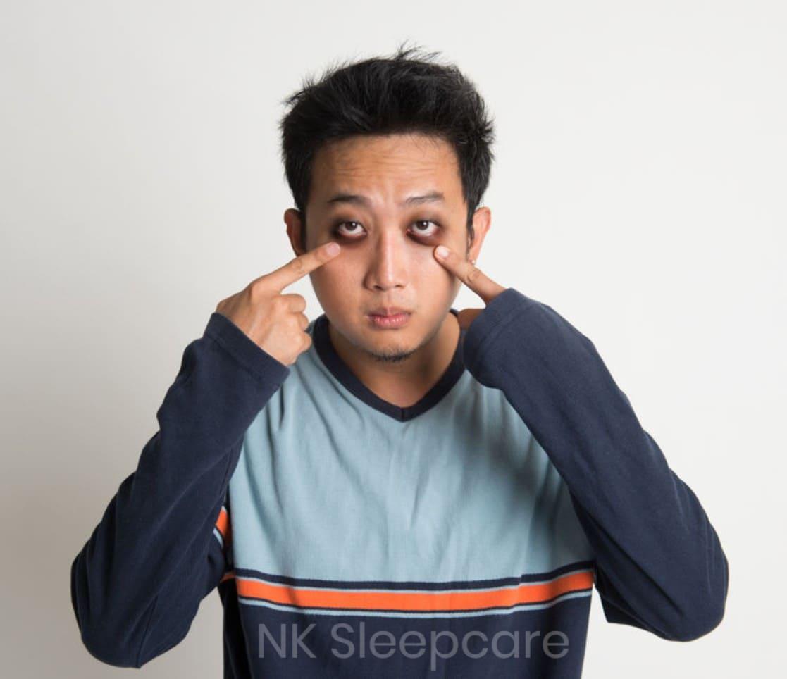 นอนไม่หลับ ส่งผลให้ตาคล้ำ