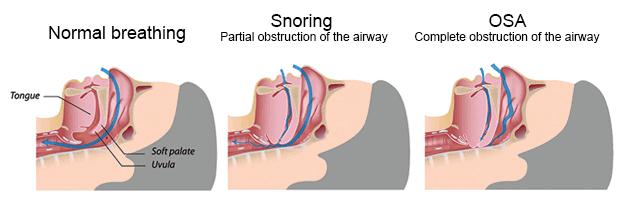 ภาพแสดงการเกิดภาวะหยุดหายใจขณะหลับ