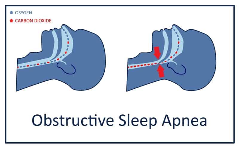 Sleep apnea คือภาวะหยุดหายใจขณะหลับ