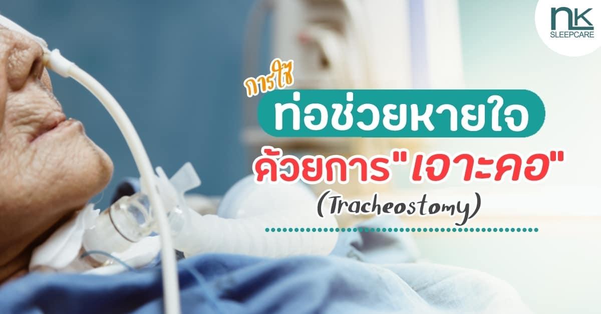 การเจาะคอ (Tracheostomy)
