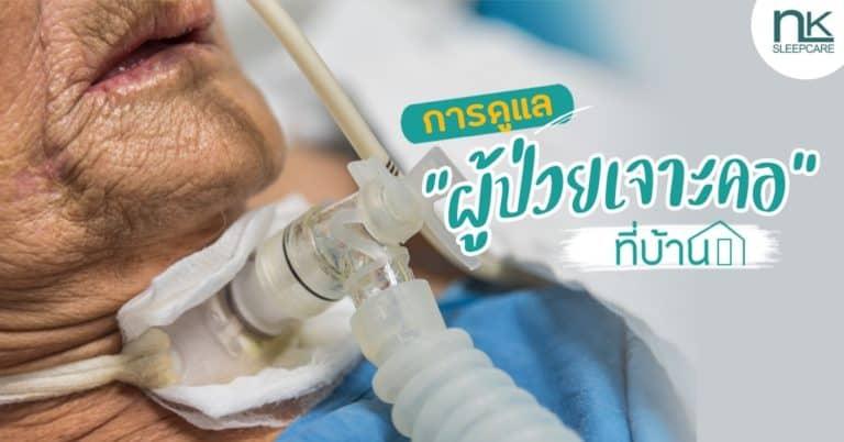 การดูแลผู้ป่วยเจาะคอ (Tracheostomy) ที่บ้าน